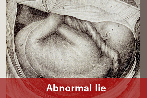 Abnormal lie